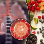 Cancer – the 20p fruit that could slash your risk of lung and stomach cancers