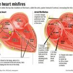 Moderate Drinking Is A Risk Factor For Atrial Fibrillation (STUDY)