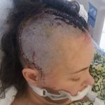 Athlete undergoes life-changing brain surgery to remove mass that could have killed her